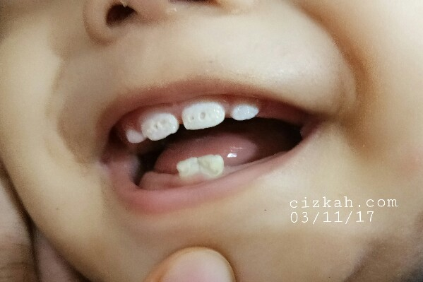gigi-bayi-rompal-gigi-cizkah1